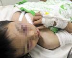 Bé trai 6 tuổi bị cha dượng bạo hành có thể bị sang chấn tâm lý