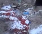 Trúng tên lửa, hàng chục người thương vong tại Yemen
