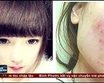 Nữ sinh viên bị nhiễm độc da, không được mang thai trong 1 năm vì hậu quả của mỹ phẩm