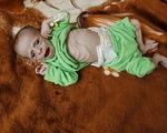 Trẻ em - Nạn nhân vô tội của nạn đói trong nội chiến Yemen