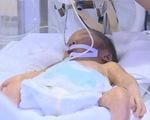 Người mẹ từ chối chữa ung thư để giữ lại con đã qua đời