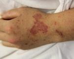 Bệnh nhân đầu tiên tử vong do bệnh viêm não mô cầu