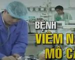 Khuyến cáo phòng chống bệnh viêm não mô cầu