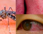 Virus Zika xuất hiện tại 30 quốc gia và tiếp tục lan rộng