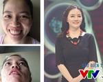 Change Life: Cô gái răng hô bị gia đình bạn trai chối từ biến hình thành búp bê