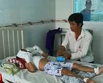 Bắt chước người lớn phun lửa bằng miệng, bé trai 7 tuổi bỏng nặng