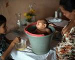 Nguy cơ trẻ bị dị tật đầu nhỏ lớn nếu mẹ nhiễm virus Zika trong 3 tháng đầu thai kỳ