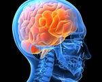 Phòng ngừa và điều trị tai biến mạch máu não