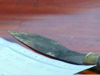 Vụ đâm dao vào đầu trẻ: Chưa xác định do mâu thuẫn hay bệnh tâm thần