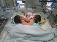 Cặp bé song sinh dính liền nhau ở Hà Giang: Phẫu thuật tách rời sẽ phức tạp và khó thực hiện