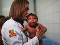 WHO: Thêm bằng chứng về virus Zika liên quan đến chứng đầu nhỏ