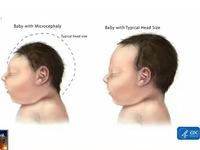 Florida (Mỹ) xác nhận sản phụ đầu tiên nhiễm Zika sinh con đầu nhỏ
