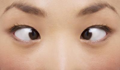 8 bài tập đơn giản giúp mắt khỏe mạnh - Ảnh 4.