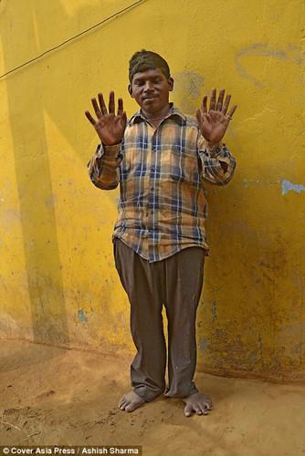 Gia đình Ấn Độ với hàng loạt thành viên có 24 ngón tay chân - Ảnh 3.