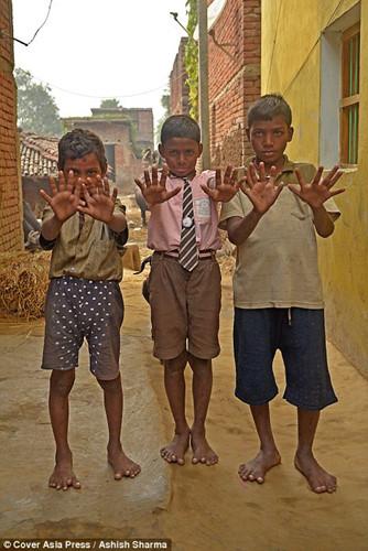 Gia đình Ấn Độ với hàng loạt thành viên có 24 ngón tay chân - Ảnh 4.