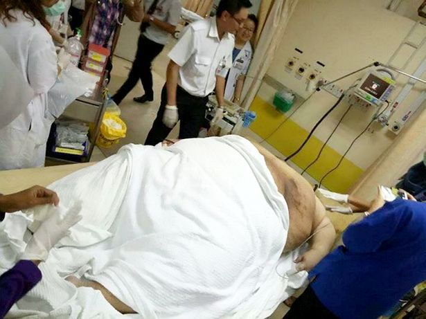Người đàn ông béo phì phải nhập viện bằng xe tải hạng nặng - Ảnh 2.
