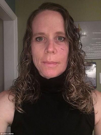 Mỹ: Hy hữu người phụ nữ bị thương vì... cá từ trên trời rơi trúng mặt - Ảnh 3.