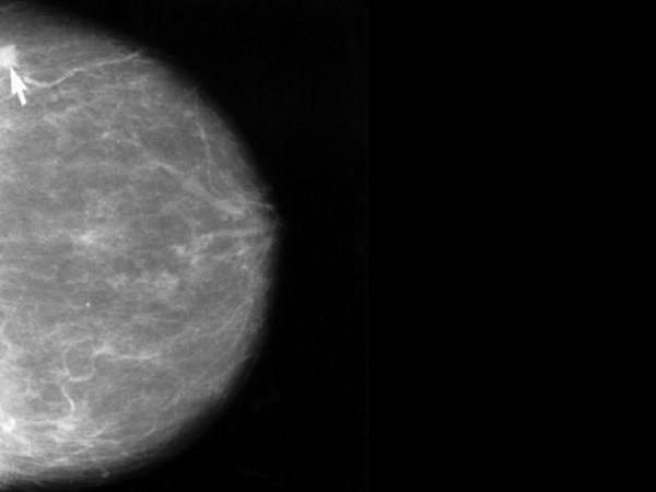11 nhóm có nguy cơ mắc ung thư vú cao nhất - Ảnh 5.
