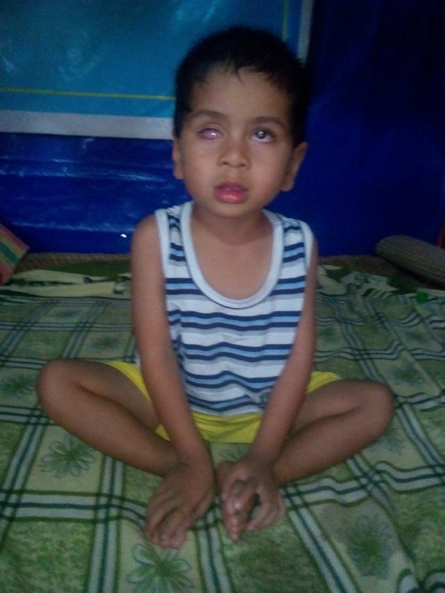 Bé 4 tuổi nguy kịch vì u nguyên bào võng mạc - Ảnh 1.