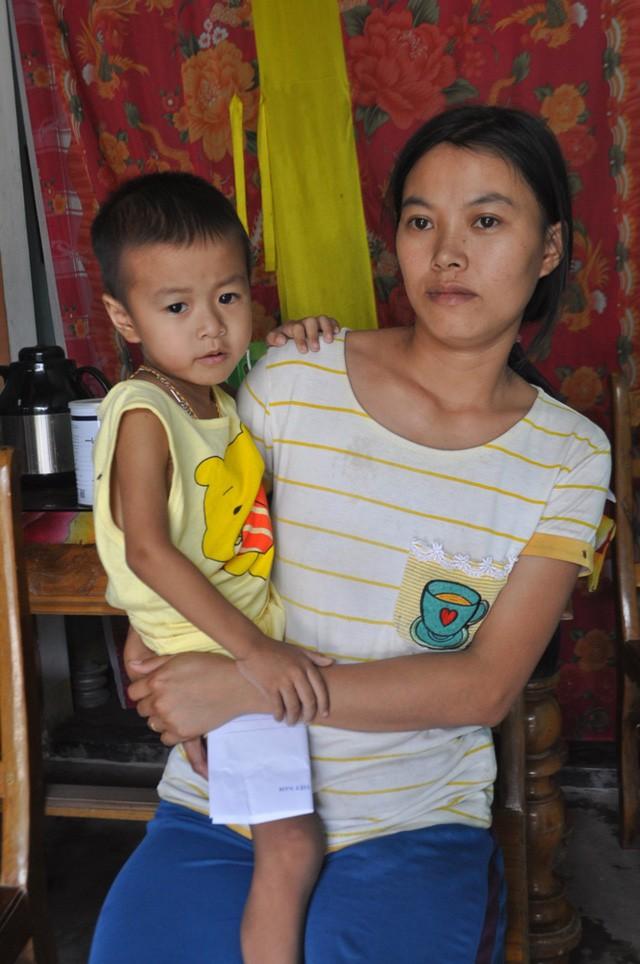 Đau xót hoàn cảnh của cháu bé 3 tuổi mắc bệnh u lao màng não - Ảnh 1.