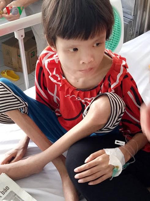 Xót xa hình ảnh da bọc xương của bé gái 15 tuổi mắc quái bệnh - Ảnh 2.
