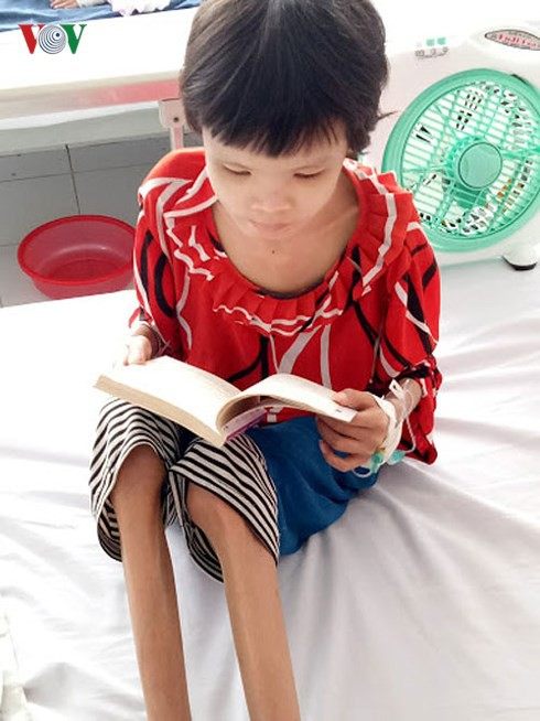 Xót xa hình ảnh da bọc xương của bé gái 15 tuổi mắc quái bệnh - Ảnh 3.