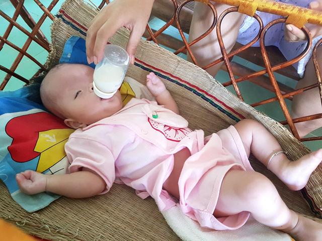 Thương bé 7 tháng tuổi mắc hội chứng Apert hiếm gặp - Ảnh 2.
