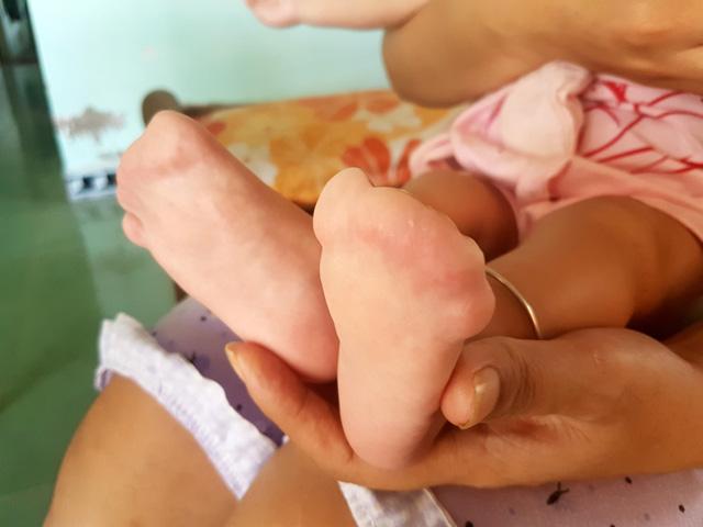 Thương bé 7 tháng tuổi mắc hội chứng Apert hiếm gặp - Ảnh 4.