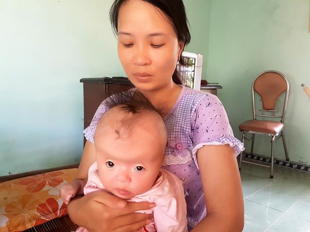 Thương bé 7 tháng tuổi mắc hội chứng Apert hiếm gặp - Ảnh 5.