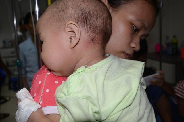Tiếng khóc xé lòng của bé 11 tháng tuổi mắc ung thư máu cấp lai tủy - Ảnh 7.