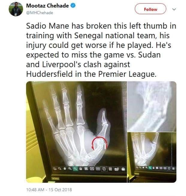 Tam tấu của Liverpool tan tác vì chấn thương - Ảnh 1.