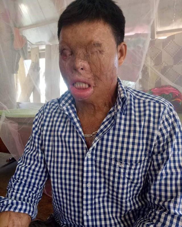 Cuộc sống khốn khổ của chàng trai có khuôn mặt biến dạng vì bị tạt axit nhầm - Ảnh 1.
