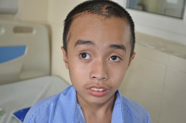 4 lần mổ não, tính mạng cậu bé 10 tuổi như ngọn đèn trước gió - Ảnh 3.