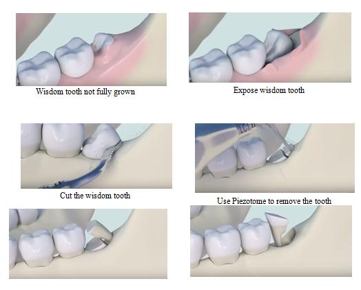 Răng khôn: Nỗi ám ảnh không của riêng ai - Ảnh 3.