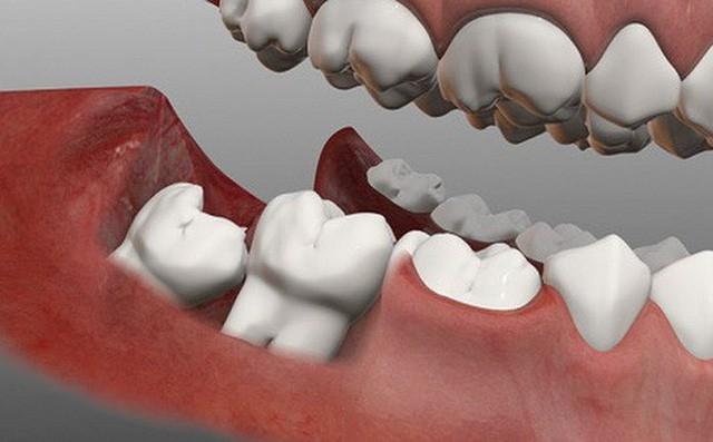 Răng khôn: Nỗi ám ảnh không của riêng ai - Ảnh 1.
