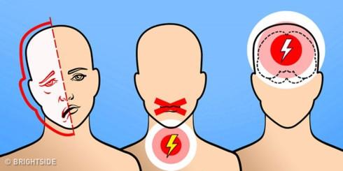 6 dấu hiệu cảnh báo cơn đột quỵ não - ảnh 1