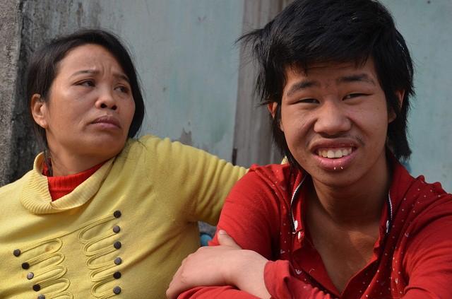 Cuộc sống khốn cùng của người mẹ u não chờ chết vì không tiền phẫu thuật - Ảnh 14.