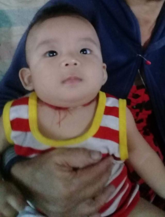 Mẹ lâm trọng bệnh, bé trai 8 tháng tuổi khát sữa - Ảnh 5.