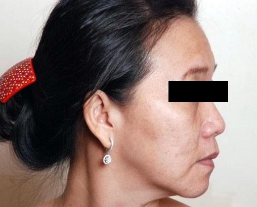Nâng cơ, trẻ hóa da, giảm béo không phẫu thuật - Ảnh 2.