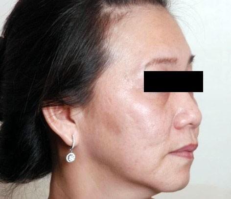 Nâng cơ, trẻ hóa da, giảm béo không phẫu thuật - Ảnh 1.