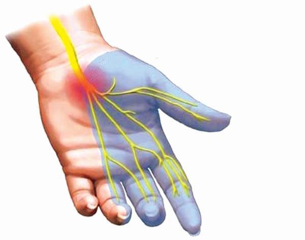 Hội chứng ống cổ tay: Bệnh không nên chủ quan - Ảnh 1.