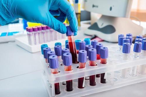 Xét nghiệm cần làm để phát hiện ung thư máu - Ảnh 2.