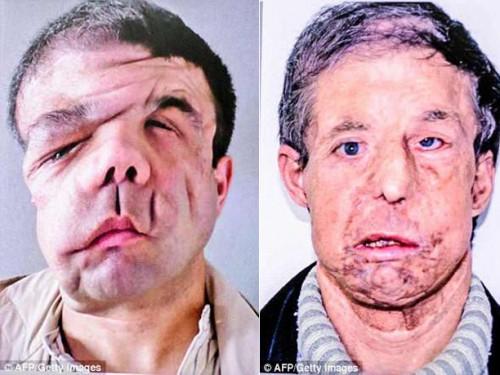 Người đàn ông có 3 khuôn mặt sau 2 lần cấy ghép - Ảnh 1.