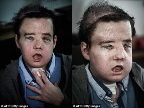 Người đàn ông có 3 khuôn mặt sau 2 lần cấy ghép - Ảnh 2.