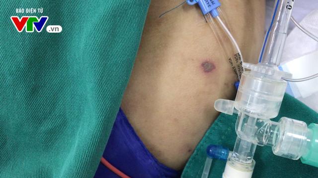 Hà Nội: Cô gái 15 tuổi bị cách ly vì viêm não mô cầu - Ảnh 1.