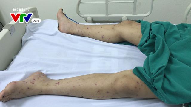 Hà Nội: Cô gái 15 tuổi bị cách ly vì viêm não mô cầu - Ảnh 2.