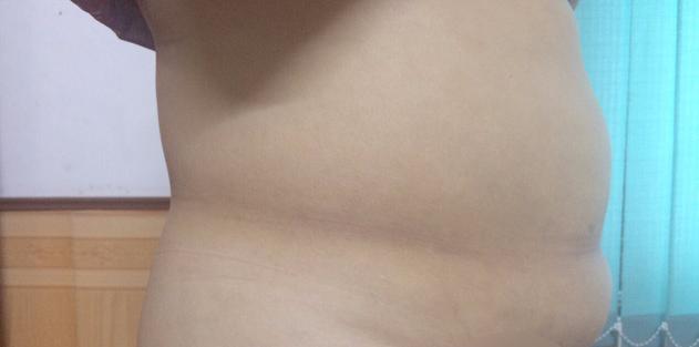 Hút mỡ nội soi và tạo hình thành bụng - Ảnh 1.