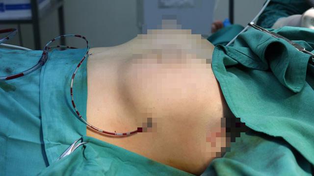 Quảng Ninh: Lần đầu tiên triển khai phẫu thuật tạo hình nâng ngực - Ảnh 2.