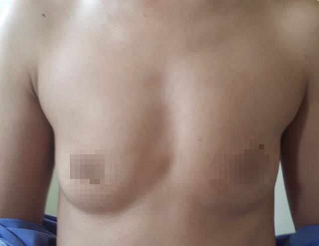 Quảng Ninh: Lần đầu tiên triển khai phẫu thuật tạo hình nâng ngực - Ảnh 1.