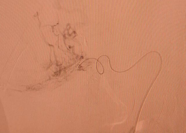 Nút mạch hóa chất - Điều trị u gan - Ảnh 1.